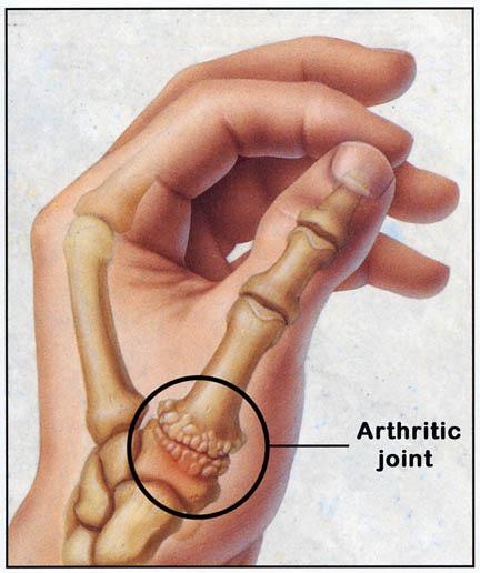 right thumb basal joint