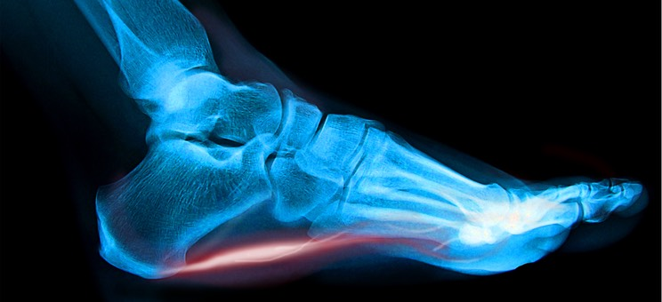 Plantarfasciitis xray with red ligt