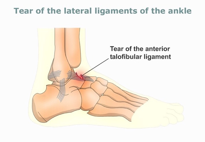 Tear-of-the-lateral-ligaments-of-the-ankle-